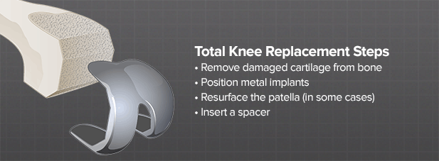 Brainlab.org_knee_treatments1